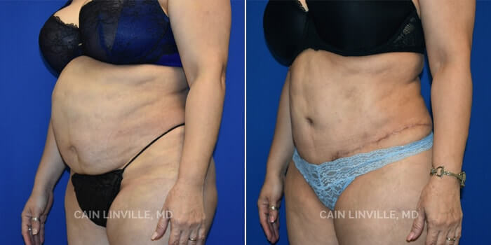 Lipo Tummy Tuck Before And After Patient 6B
