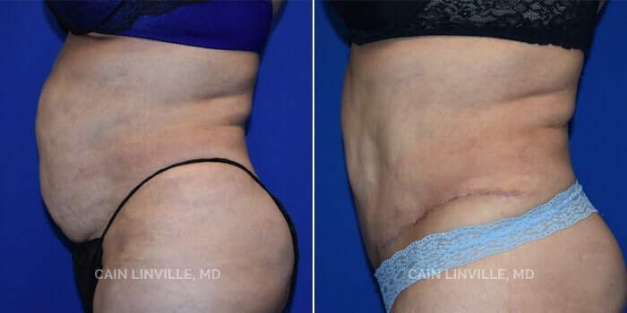 Lipo Tummy Tuck Before And After Patient 6C