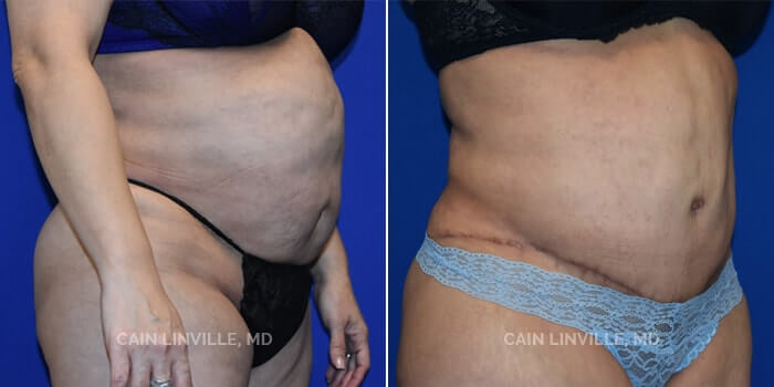 Lipo Tummy Tuck Before And After Patient 6D