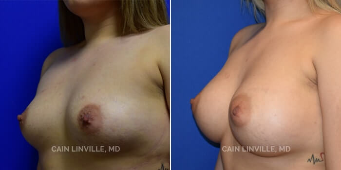 Breast Augmentation Before And After Patient 15B