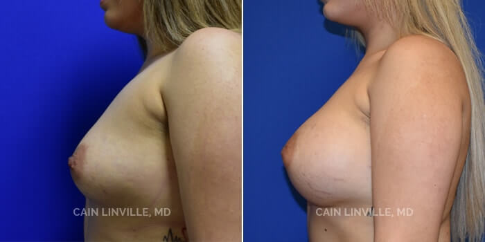 Breast Augmentation Before And After Patient 15C