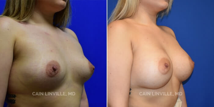 Breast Augmentation Before And After Patient 15D