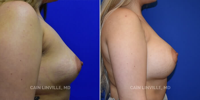 Breast Augmentation Before And After Patient 15E
