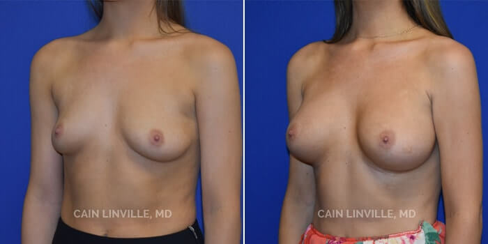 Breast Augmentation Before And After Patient 16B