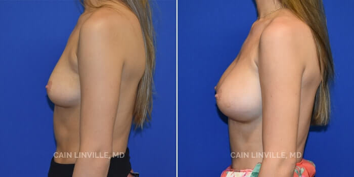 Breast Augmentation Before And After Patient 16C
