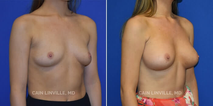 Breast Augmentation Before And After Patient 16D