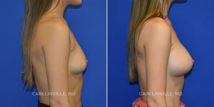 Breast Augmentation Before And After Patient 16E