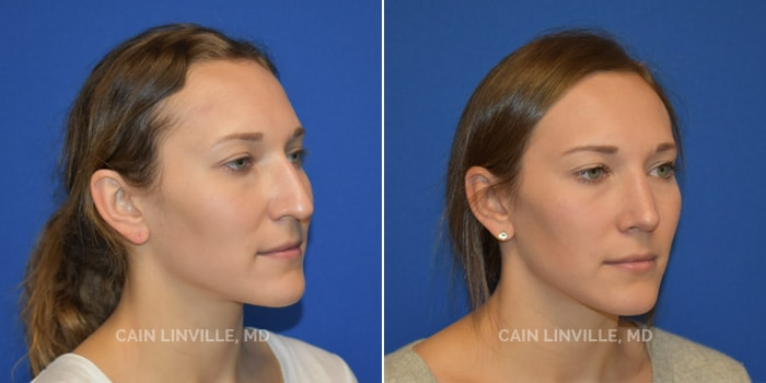 Rhinoplasty Before And After Patient 1A