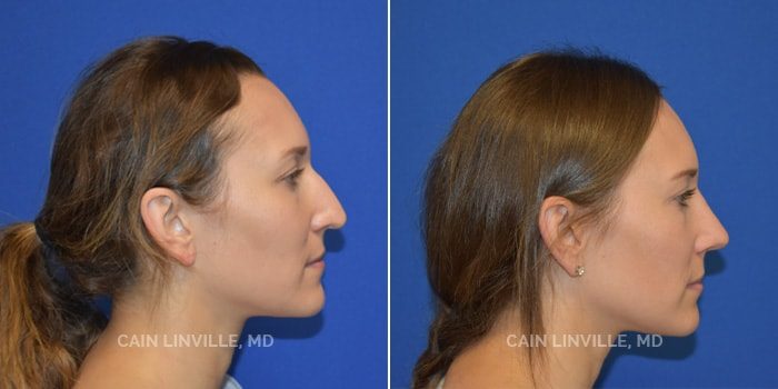 Rhinoplasty Before And After Patient 1B