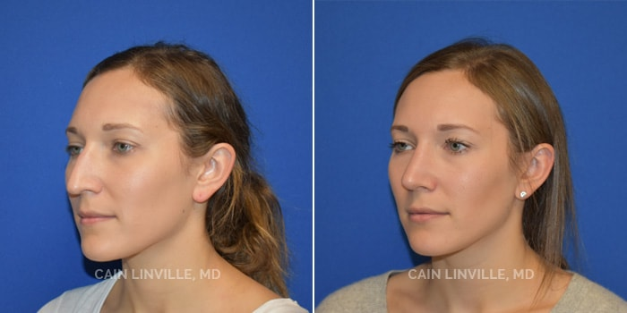 Rhinoplasty Before And After Patient 1C