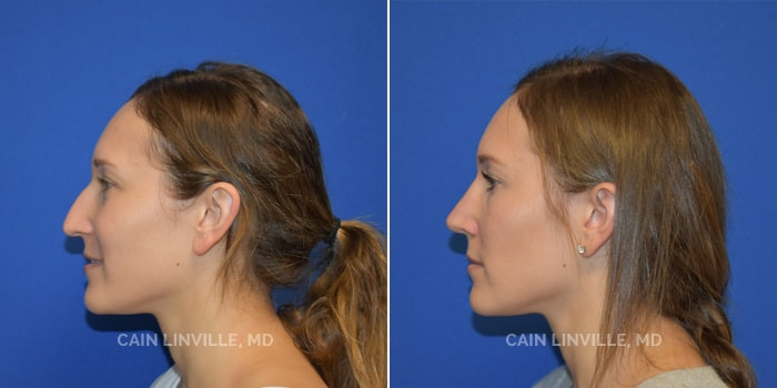 Rhinoplasty Before And After Patient 1D