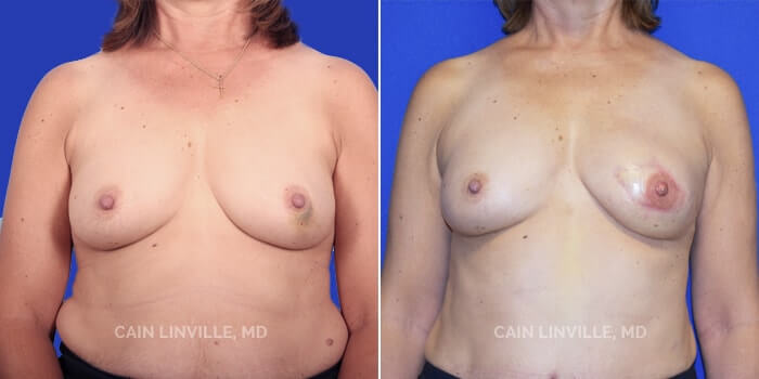 Breast Reconstruction Before And After Patient 3A