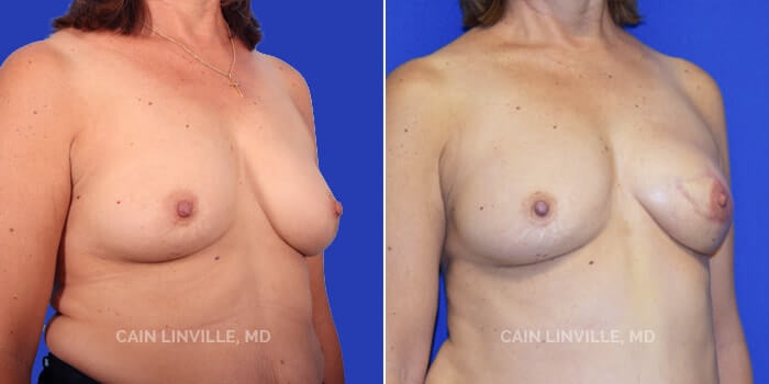 Breast Reconstruction Before And After Patient 3B