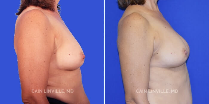 Breast Reconstruction Before And After Patient 3C