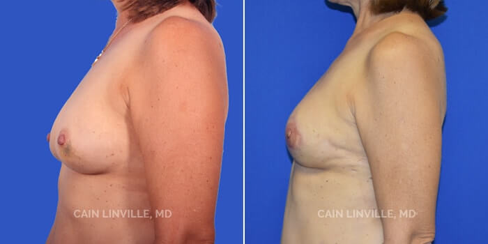 Breast Reconstruction Before And After Patient 3E
