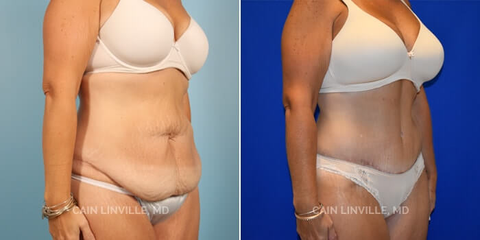 Lipo Tummy Tuck Before And After Patient 7B