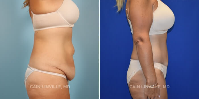 Lipo Tummy Tuck Before And After Patient 7C