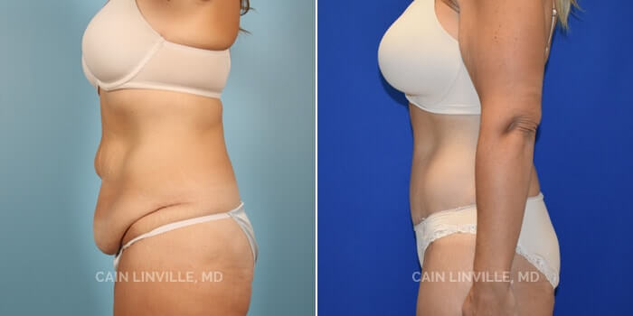 Lipo Tummy Tuck Before And After Patient 7E