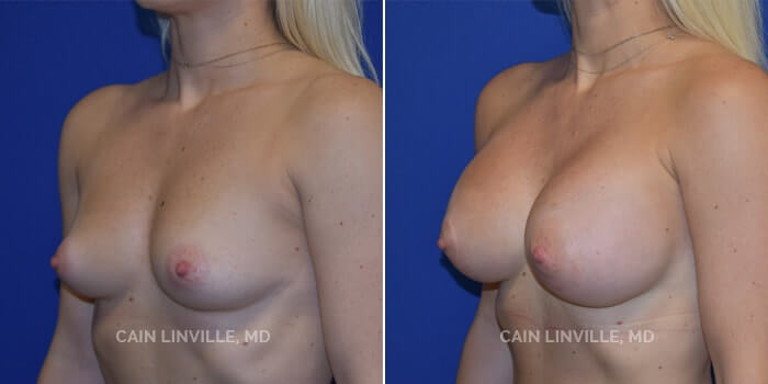 Breast Augmentation Before And After Patient 4B