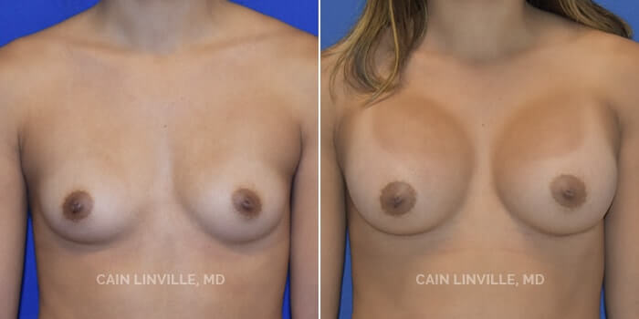 Breast Augmentation Before And After Patient 17A