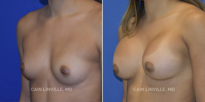 Breast Augmentation Before And After Patient 17B