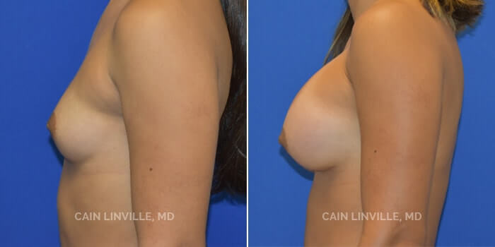 Breast Augmentation Before And After Patient 17C