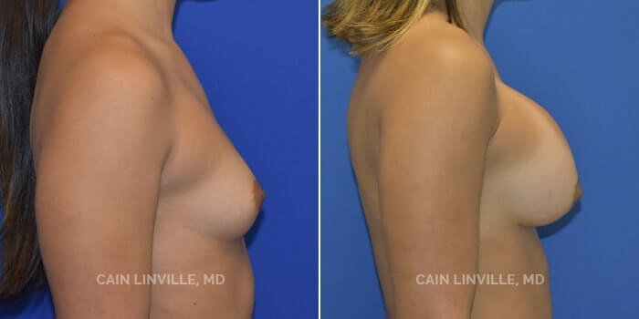 Breast Augmentation Before And After Patient 17E