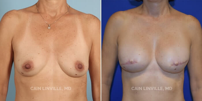 Breast Reconstruction Before And After Patient 4A