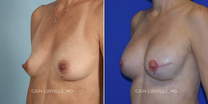 Breast Reconstruction Before And After Patient 4B
