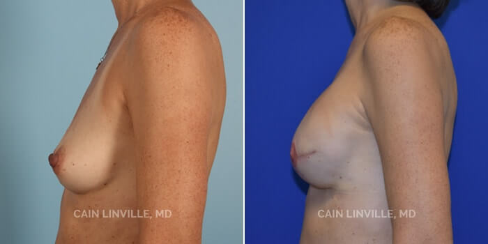 Breast Reconstruction Before And After Patient 4C