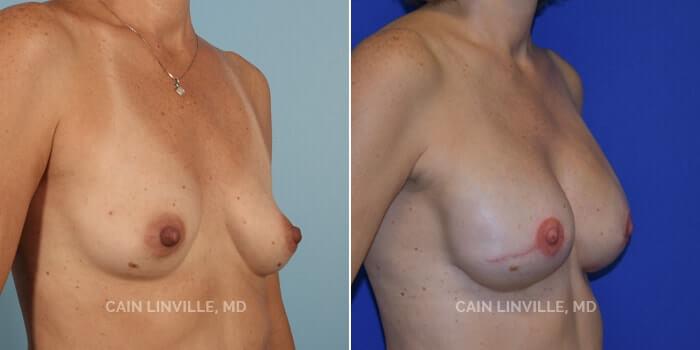 Breast Reconstruction Before And After Patient 4D