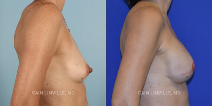 Breast Reconstruction Before And After Patient 4E