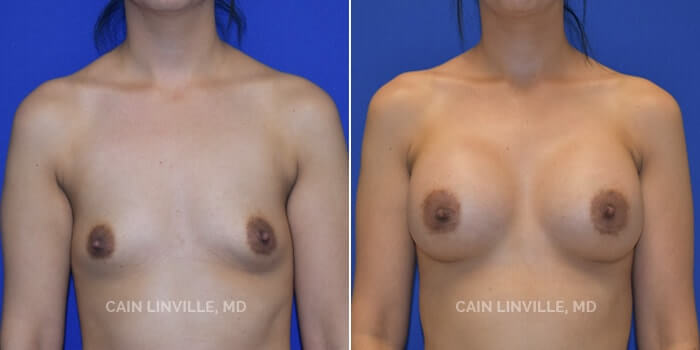 Breast Augmentation Before And After Patient 3A