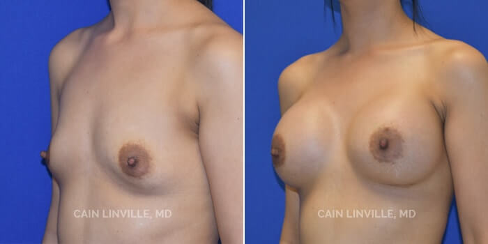 Breast Augmentation Before And After Patient 3B