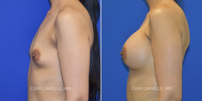 Breast Augmentation Before And After Patient 3C
