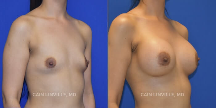 Breast Augmentation Before And After Patient 3D