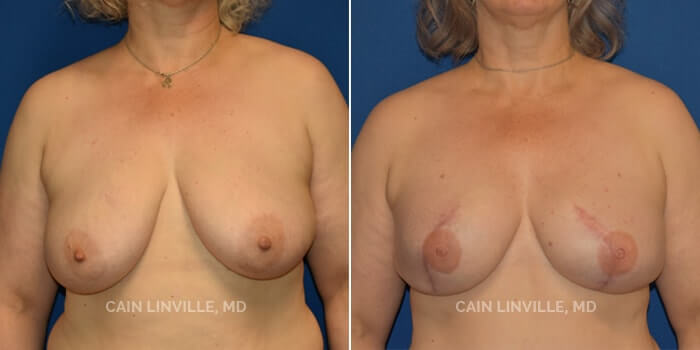 Breast Reconstruction Before And After Patient 8A
