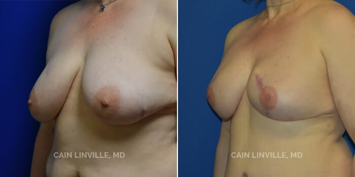 Breast Reconstruction Before And After Patient 8B