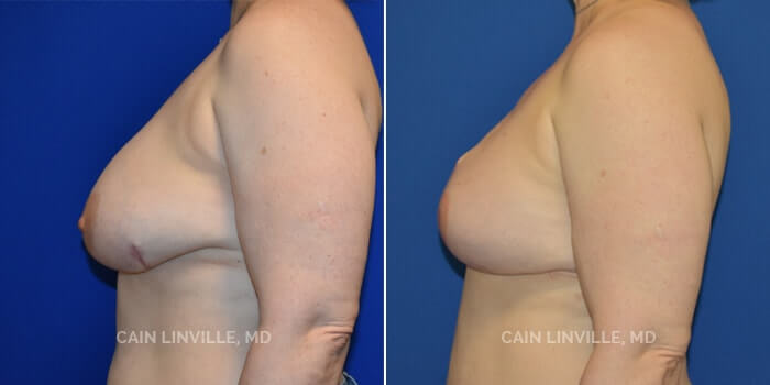 Breast Reconstruction Before And After Patient 8C