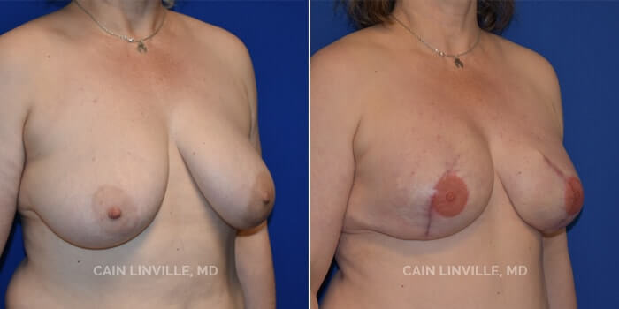 Breast Reconstruction Before And After Patient 8D