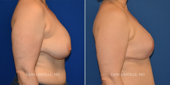 Breast Reconstruction Before And After Patient 8E