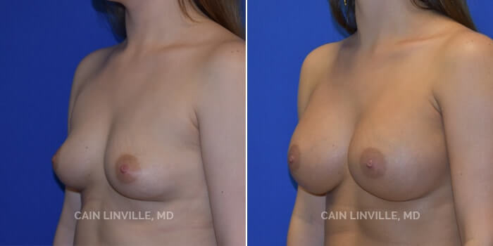 Breast Augmentation Before And After Patient 2B
