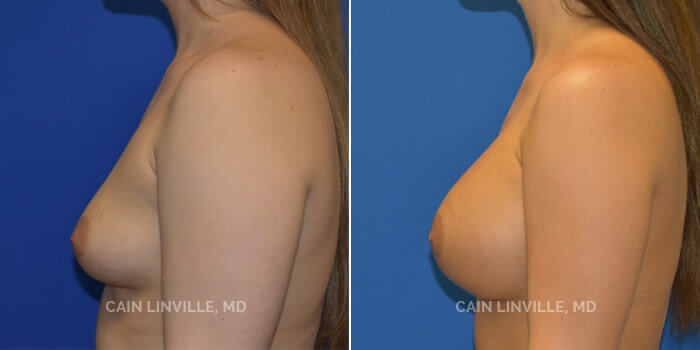 Breast Augmentation Before And After Patient 2C