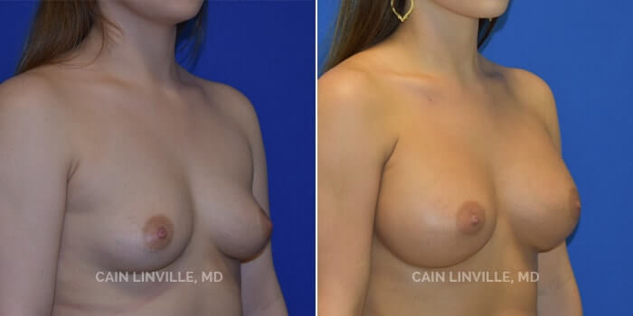 Breast Augmentation Before And After Patient 2D