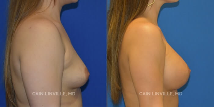 Breast Augmentation Before And After Patient 2E
