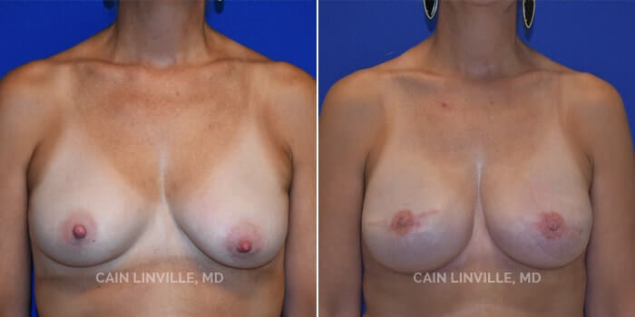 Breast Reconstruction Before And After Patient 5A