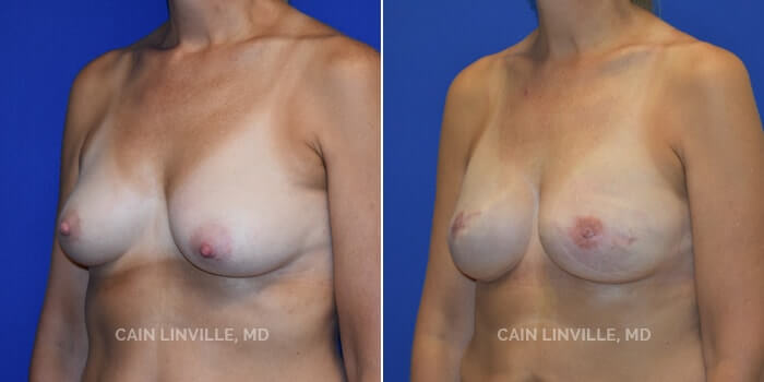Breast Reconstruction Before And After Patient 5B