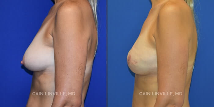 Breast Reconstruction Before And After Patient 5C