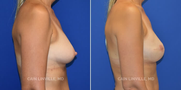 Breast Reconstruction Before And After Patient 5E