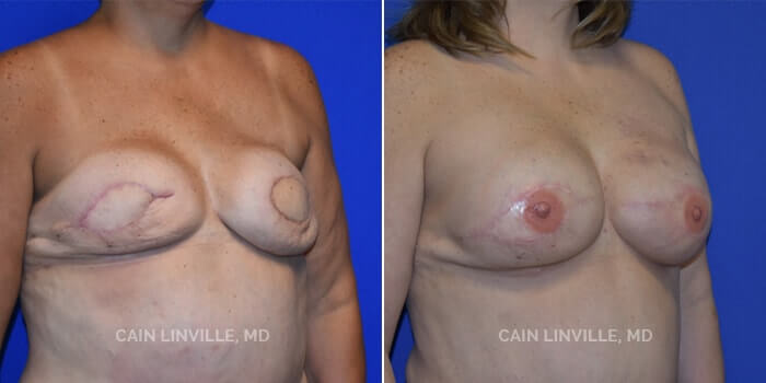 Breast Reconstruction Before And After Patient 6B